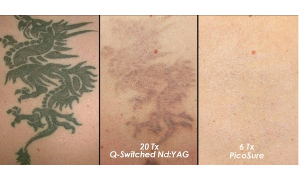 Tattoo Removal Treatment